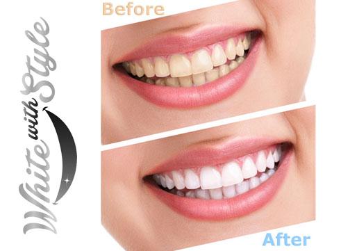 white-with-style-25-teeth-whitening-kit-1-6206832-regular